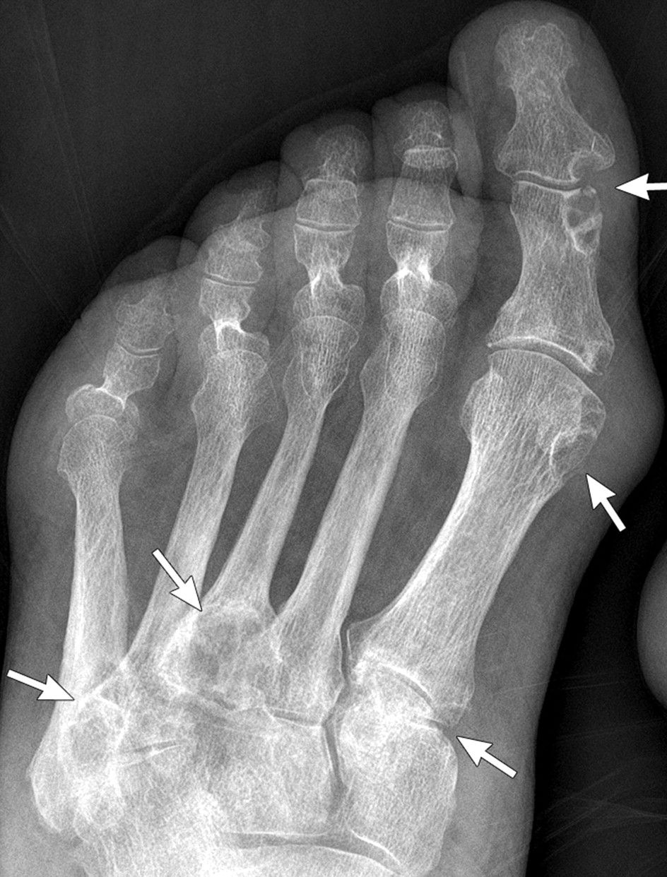 Gout. Anteroposterior foot radiograph shows multiple punched-out ...