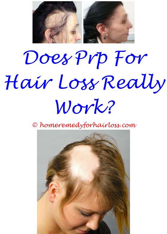 Frontal Hair Loss Treatment | Hair loss and Hair loss news