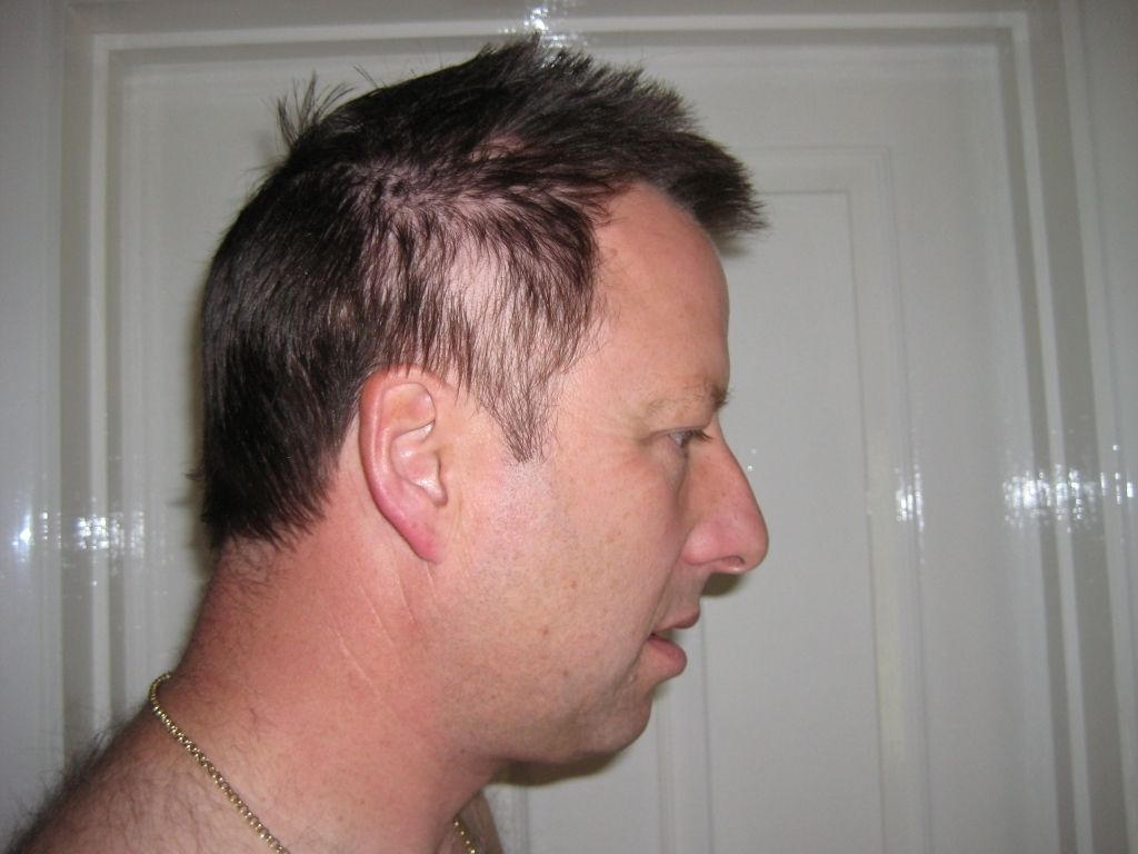 Hairstyle For Thinning Hair Men