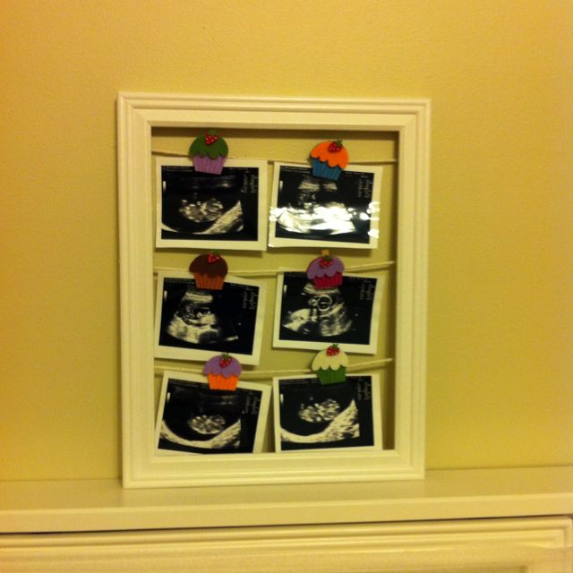 Way to display ultrasound pictures using cupcake clothespins