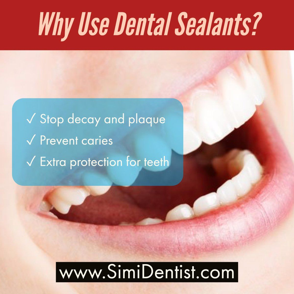 Dental sealants act as barriers to prevent cavities