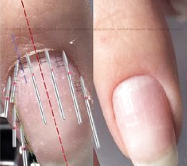 Pin By Erin Thatcher On Nail Techniques In 2020 Diy Acrylic Nails Nail Techniques Gel Nails Diy