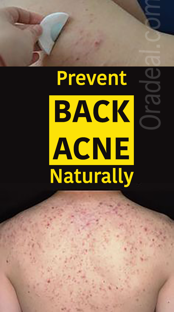 How To prevent BACK ACNE Acne treatment cream, Anti acne