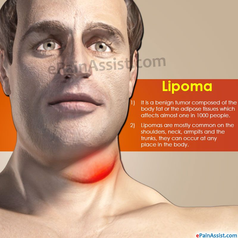 Natural treatments for facial lipoma