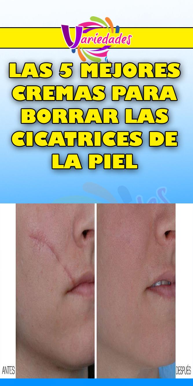 Las 5 Mejores Cremas Para Borrar Las Cicatrices De La Piel Cremas