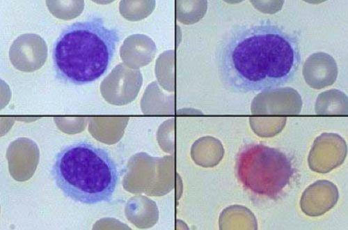 tricoleucemia | Leucemia a cellule capellute