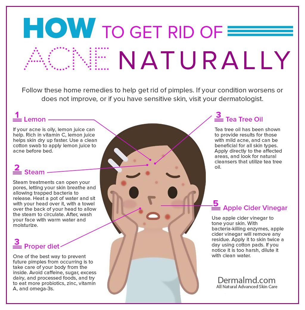 Acne Treatment  Pimple