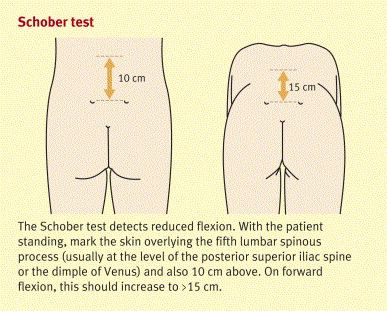 Schober test pain pinterest medicina for Test fisioterapia