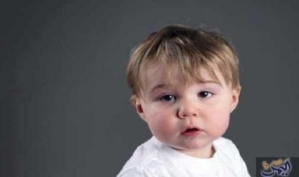 تعرفي على أسباب حول العين عند الرضع Baby Face Face Baby