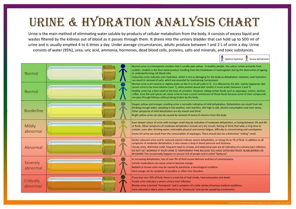 urine color chart and what they mean - Bing images Urine color - sample urine color chart