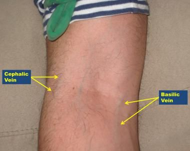 antecubital veins (right arm) - notice the variable anatomy and, Cephalic Vein