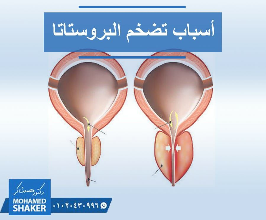 لعلك تتساءل الآن عن سبب تضخم البروستاتا لم يعرف بعد السبب المباشر لتضخم البروستاتا ولكنه يعتبر من العمليات الفسيولوجية في أجسام ال Cat Eye Glass Glasses Eyes