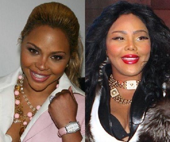 Lil Kim Lips Surgery Celebrity Plastic Surgery Lil Kim