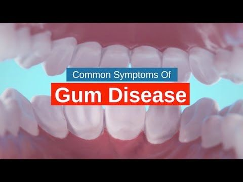 Mernda Dentist Tips: Common Symptoms Of Gum Disease www.unitedsmiles.com.au