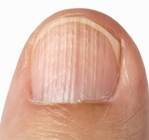 Ce que vos ongles peuvent dire de vous - beauté-pu
