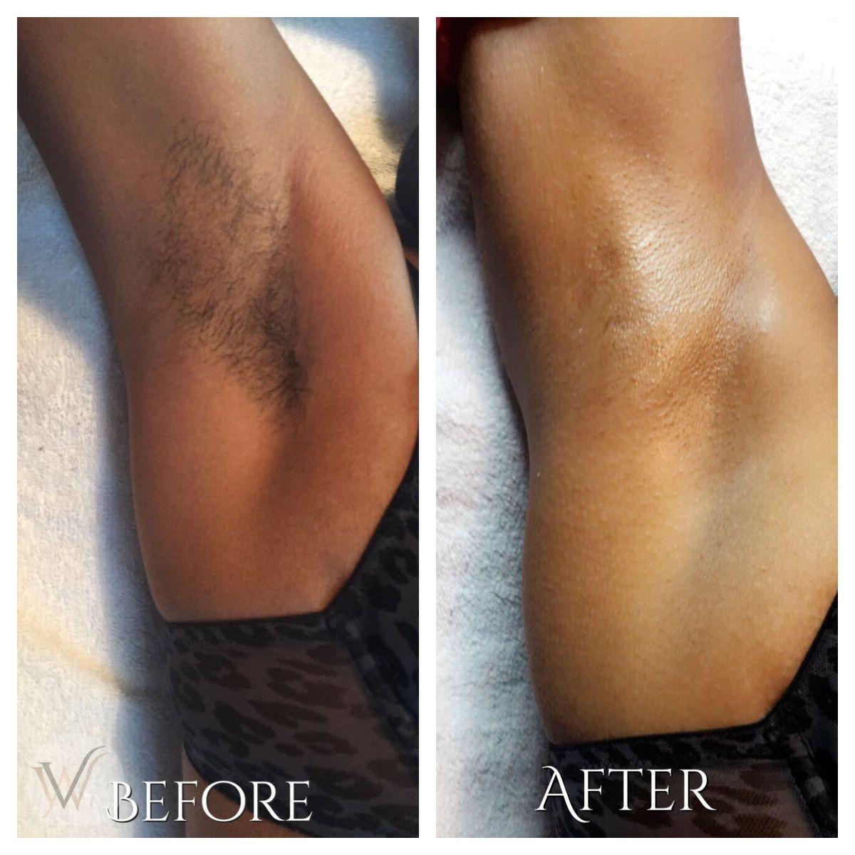 Waxing Armpit Before And After Armpitwax Depilacao Fotodepilacao Pernas