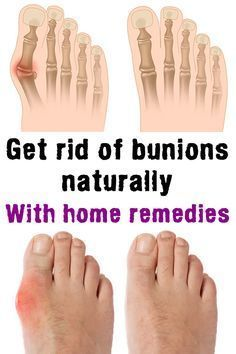 7596ae8d65c Get rid of bunions naturally, with home remedies | foot problems ...