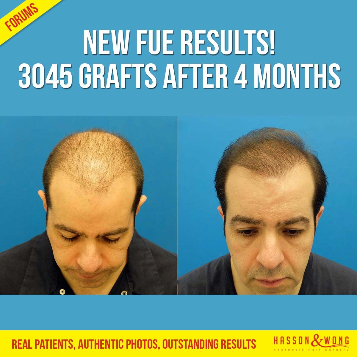 Real patients, real results. See 4 months growth after 3045 FUE grafts. http://bit.ly/29YUwjV #hair #haircut #hairstyle #menshair #hair-loss #hairloss #bald #hairtransplant #hair-transplant #hassonandwong #transplant #nofilter