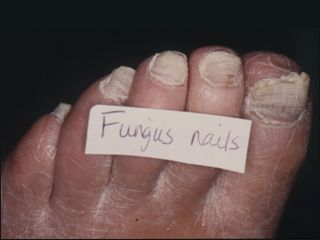 How Can I Tell If Have Toenail Fungus