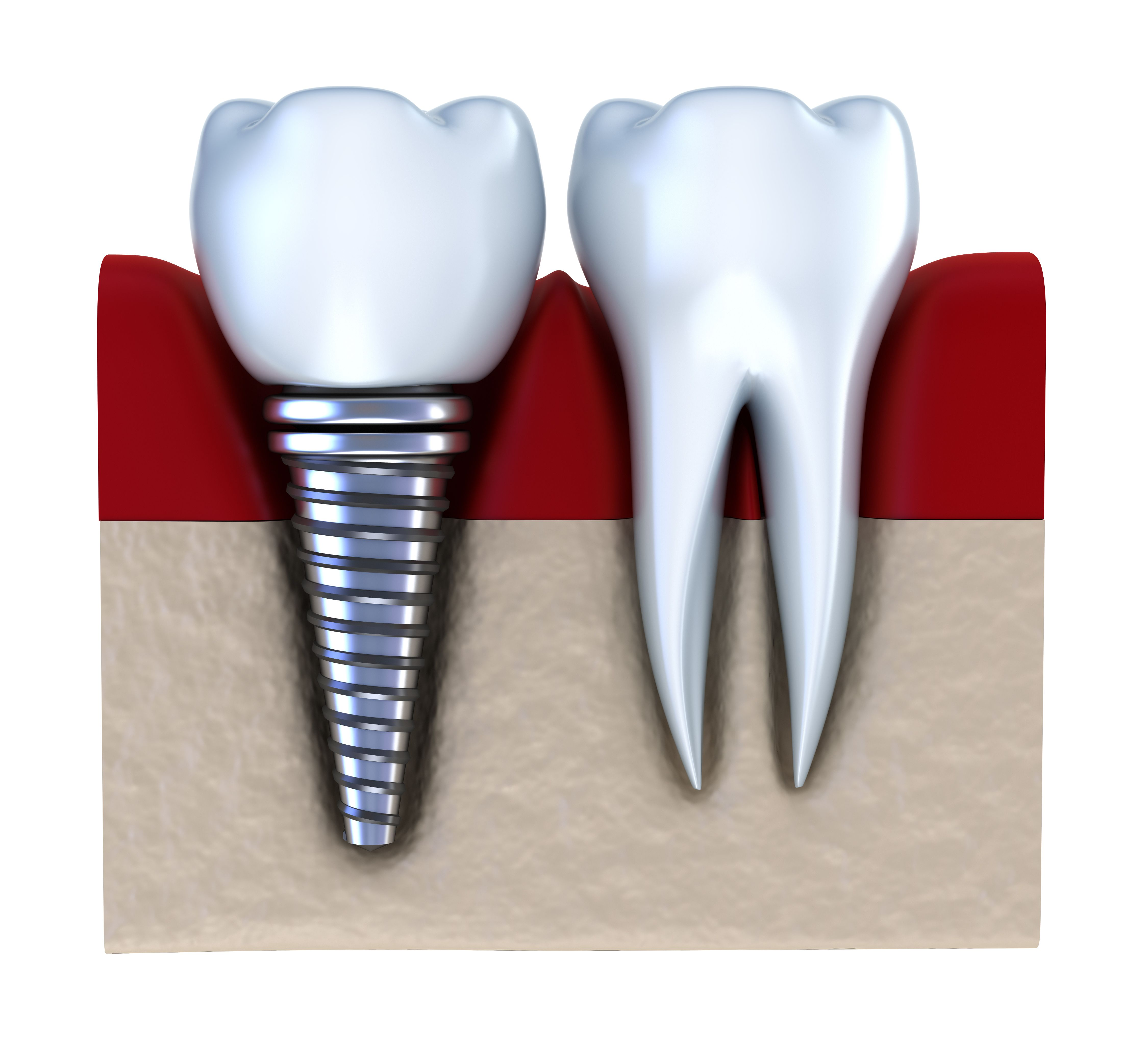 Learn more about how Dental Implants are the successful solution ...