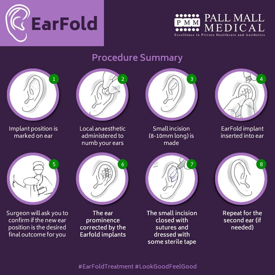 The Earfold procedure takes about 20 minutes using only