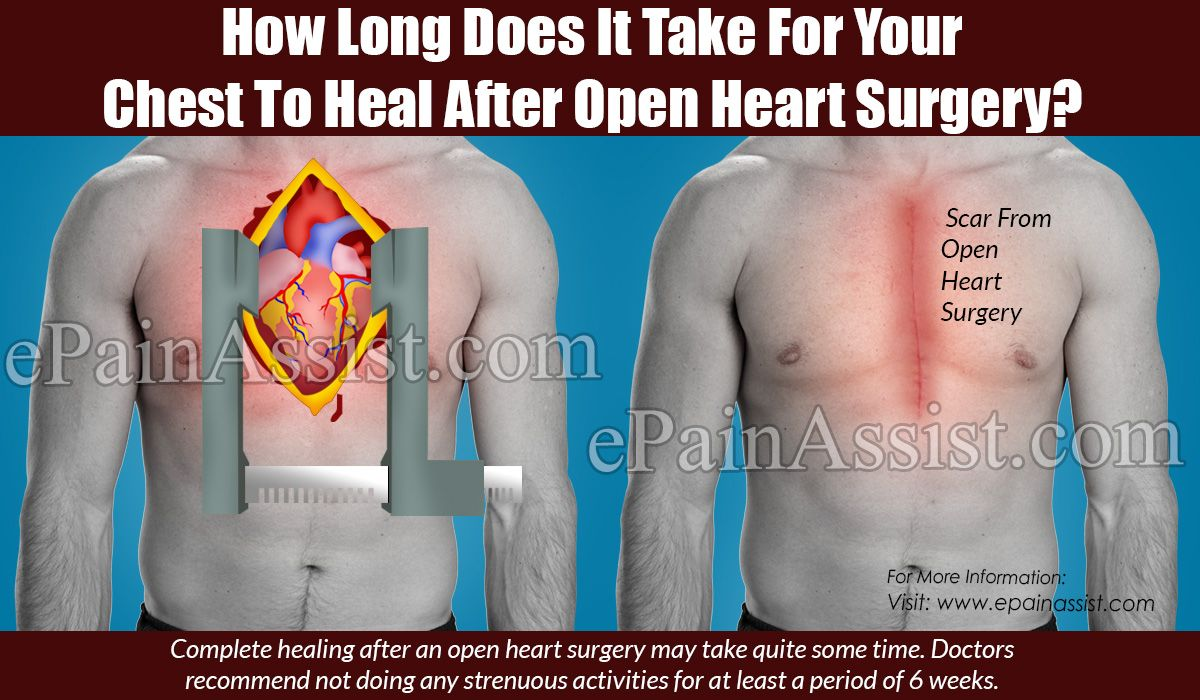 Pin on chest pain