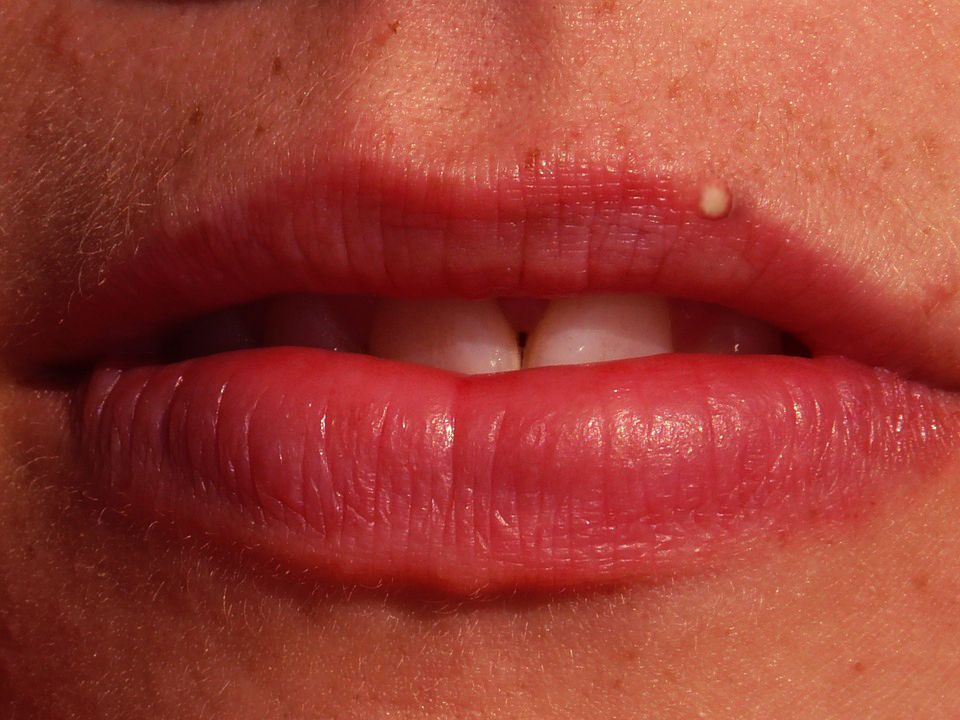 A Pimple On Lip Causes And Remedies Http Www Xaidy Com