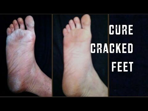 YouTube   Dry cracked feet, Cracked