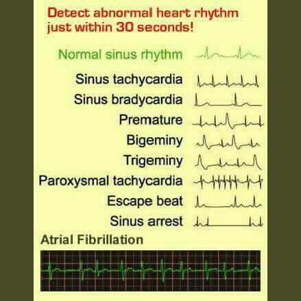 Quick EKG