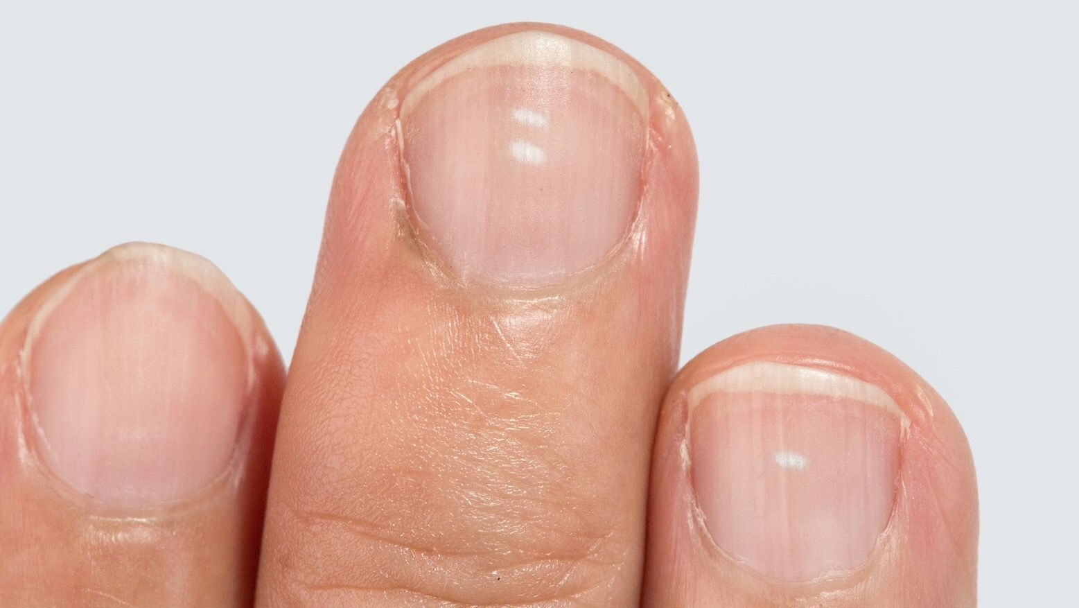 What The White Spots On Your Fingernails Reveal About Your Health White Spots On Nails White Spots On Fingernails Fingernail Health