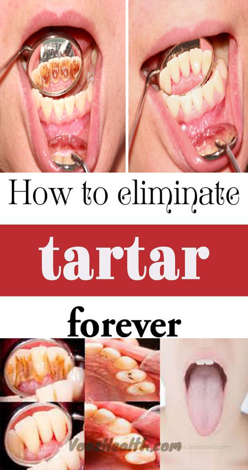Be your own dentist here are tricks to remove tartar