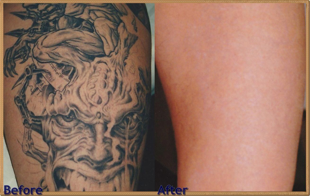 how much for #tattoo removal, best #laser tattoo, laser tatto ...