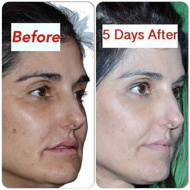 Vampire Facelift Before And After Photos 2 Facelift Info Prices Photos Reviews Q A Facelift Before And After Facelift Photo