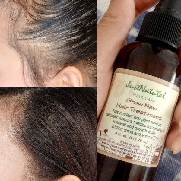 I Never Thought A Natural Product Was The Answer To My Hair Loss My