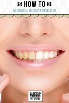 DIY Teeth Whitening | Whiten Teeth At Home Naturally by Makeup Tutorials at http://makeuptutorials.com/whiten-your-teeth-naturally/