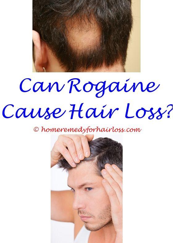 Womens Hair Loss Treatment Pinterest Hair Loss Hair Loss