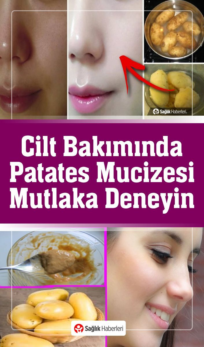 Photo of #Bakımında #cilt #Mucizesi #Patates Patates Suyu Kozmetik Ür…