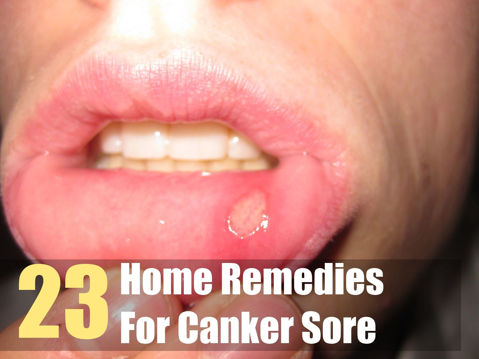23 Home Remedies For Canker Sore Canker sore