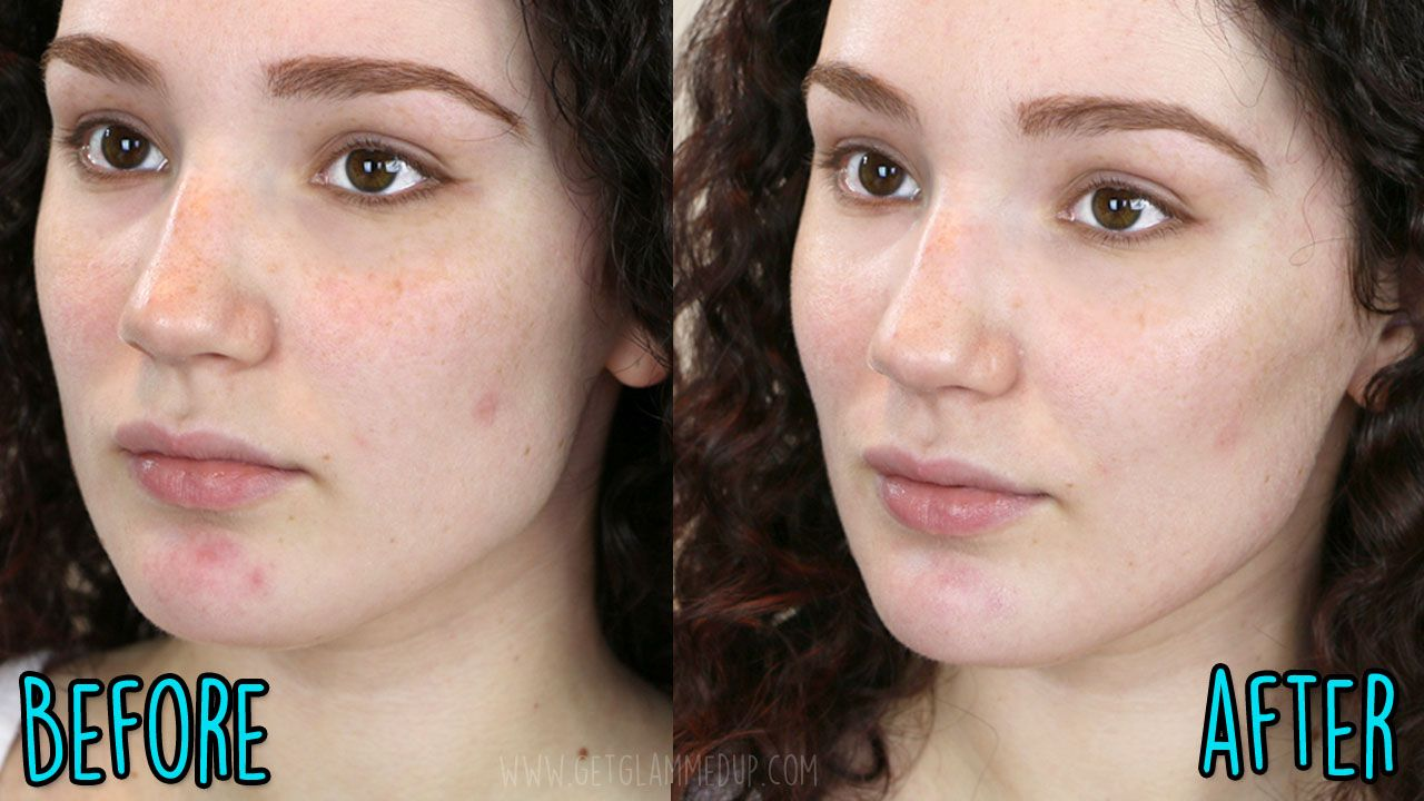 how to keep your face clear of acne