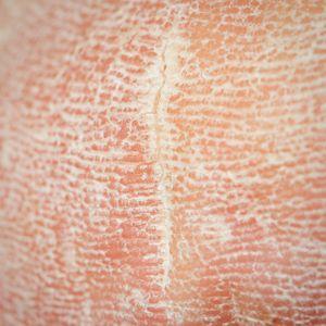 Senior Skin Problems | Senior Health | Skin problems, Bed