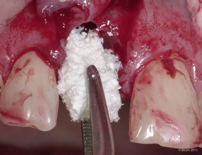 Bone Grafting After Tooth Extraction Dental Issues