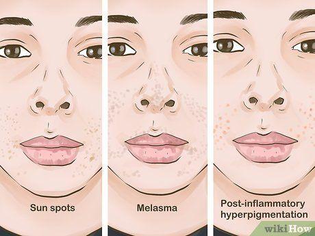 67a9548614d6f9330eb4a37e9a30b0b5 - How To Get Rid Of Black Marks Around Mouth