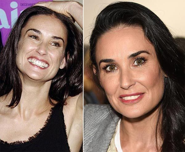 Demi Moore Plastic Surgery - How Much Is Too Much? - http ...