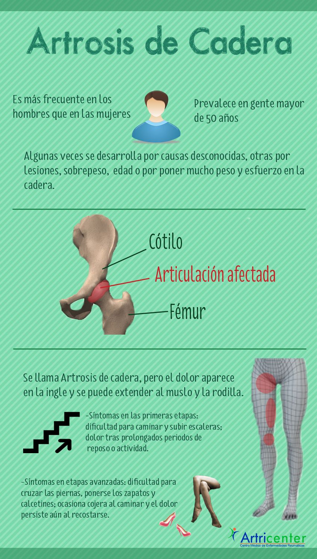 osteoartrosis etapas