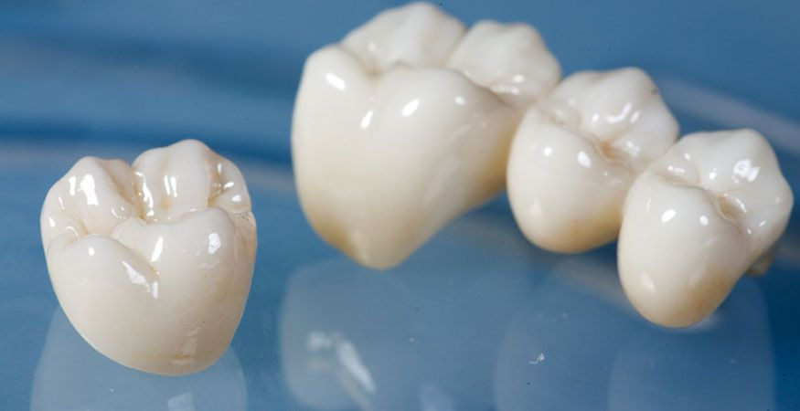 Bruxzir solid zirconia dental crowns dental dental