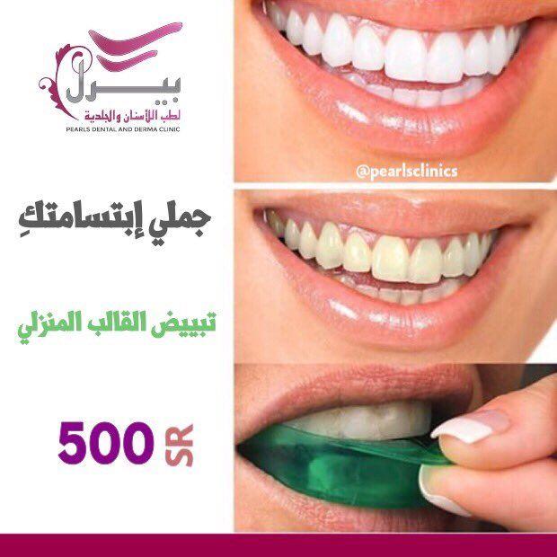 جملي إبتسامتك تبييض القالب المنزلي 500 ريال مركز بيرل اسنان جلدية ليزر الرياض فرع الازدهار 0112632424 فرع المونسيه 0544229299 Dental Pearls