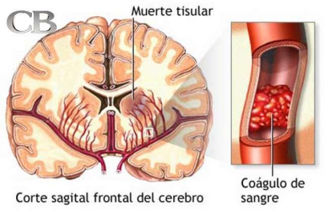 Cómo actuar ante un derrame cerebral