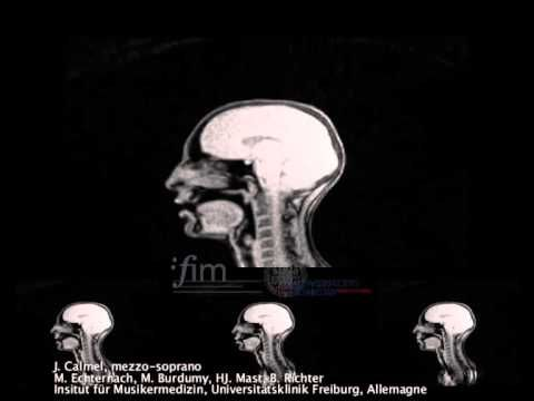 SEEING SPEECH- Dynamic real-time MRI film of Bruder Jakob/Frère Jacques - YouTube
