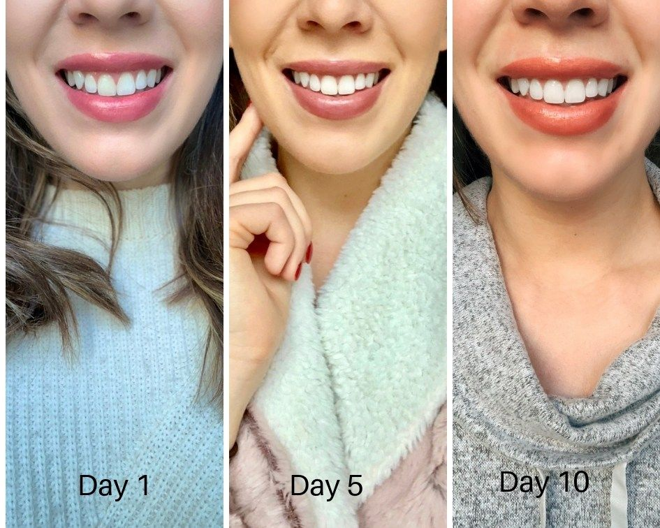 My Crest 3d Whitestrips Results And Complete Review Whitestrips Crest Simply Life