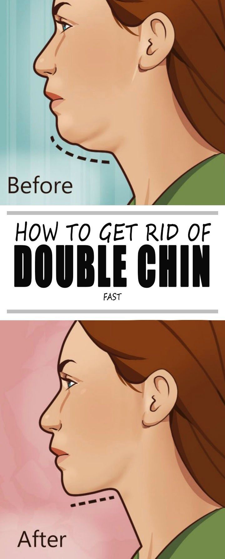How to get rid of a double chin fast doublechin